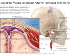 Middle Meningeal Artery in Extradural Hematoma