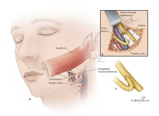 Gracilis Muscle Graft for Facial Reanimation: Final Anatomy