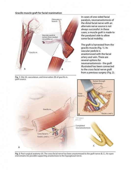 Gracilis muscle graft for Facial Reanimation